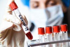 Число заболевших COVID-19 в Краснодарском крае превысило 14 тысяч